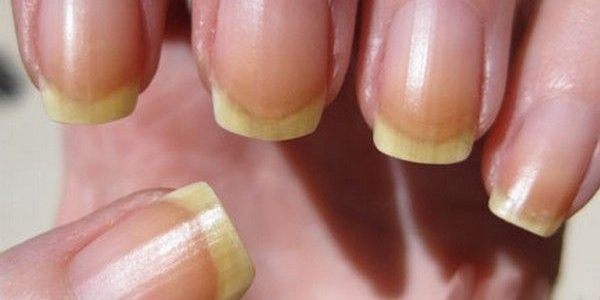 Nail Discoloration Fix
